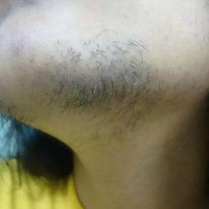 Волосы на подбородке, 12 января 2012