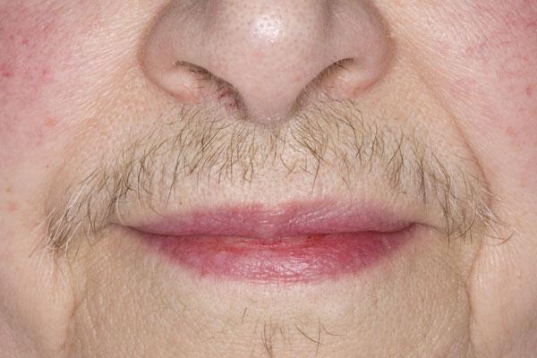 Усы в период менопаузы