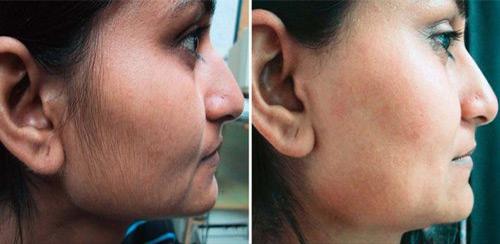 Фотография до и после применения крема с сайта производителя Эфлоры