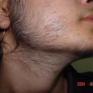 Гипертрихоз, вызванный фотоэпиляцией