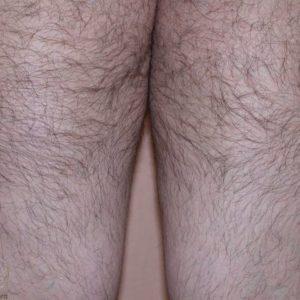 Обобщенный гипертрихоз на ногах