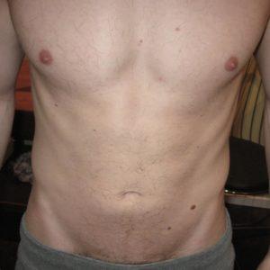 Так выглядит живот после 4-х процедур.