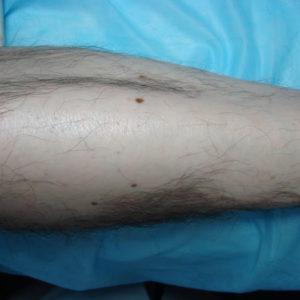 Эта же нога через 5 месяцев в феврале 2012 года.