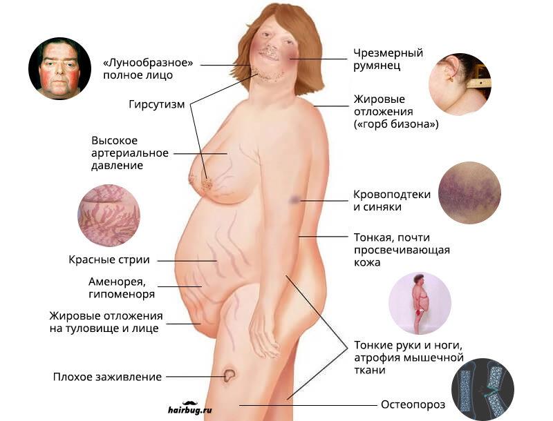 Симптомы при синдроме Иценко-Кушинга