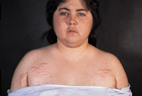 Девушка, страдающая синдромом Иценко-Кушинга