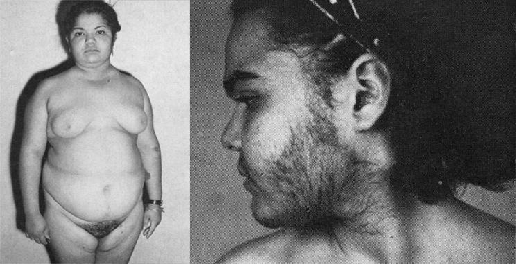 Позднее начало заболевания, фото из статьи Acta Endocrinol January 1, 1978, N. 87, PP. 139-147