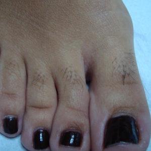 Электроэпиляция пальцев ног