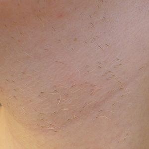 Электроэпиляция волос на шее