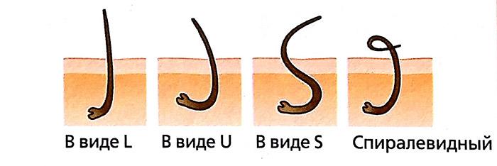 Деформация волосяной фолликулы