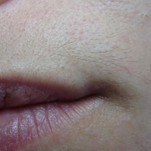 Электроэпиляция волос над губой (женские усики)
