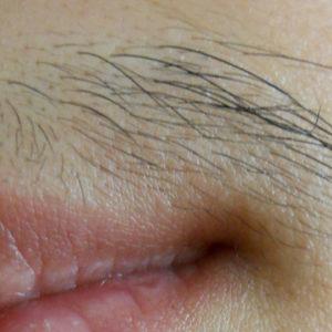 Терминальные волосы над губой у девушки с синдромом поликистозных яичников