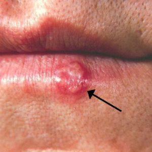 Активная форма герпеса на губе