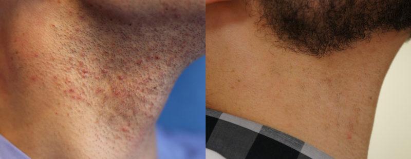 На фотографии мужчина страдал от фолликулита на шее из-за частого бритья. После курса лазерной эпиляции густота волос сильно сократилась и бриться стало проще.