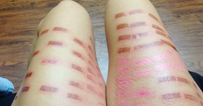 Пигментация на ногах после лазерной эпиляции