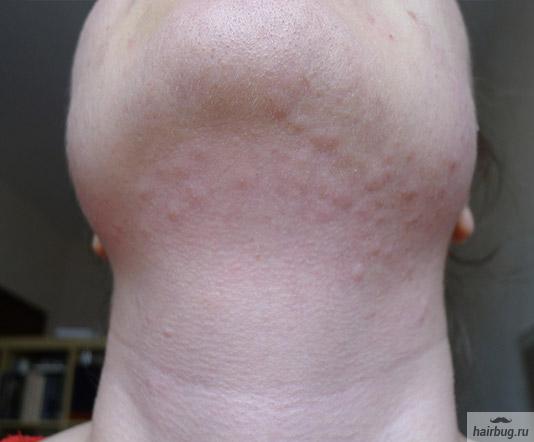 Припухлость и легкое покраснение кожи в первый час после электроэпиляции (метод бленд)