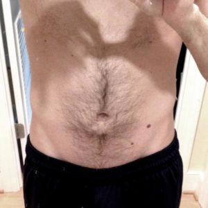Волосы на животе и груди мужчины. Первая процедура длилась 12 часов.
