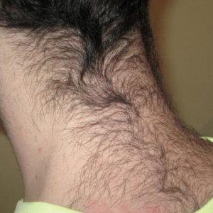 Электроэпиляция волос на линии лба и задней стороне шее (исправление линии роста волос)