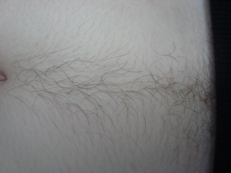 Как убрать волосы на животе