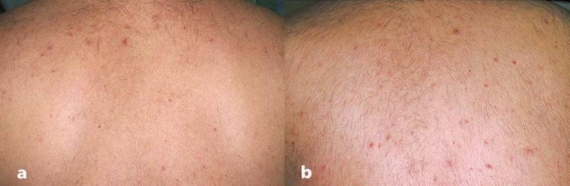 30-летний мужчина хотел избавиться от единичных волос на спине. После лазерной эпиляции шерсти стало еще больше.