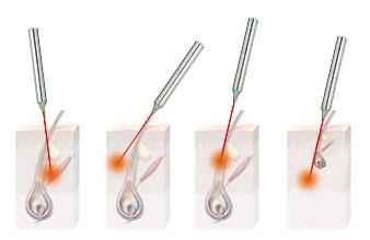 Ошибки введения иглы (оранжевым цветом помечен очаг тепла при термолизе): 1-2) проткнутая стенка фолликула; 3) недостаточная глубина введения; 4) проткнутое дно фолликула
