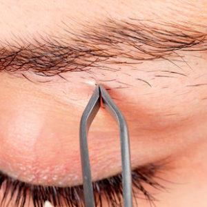Выщипывание волос пинцетом