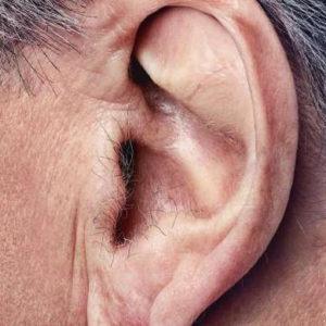 Электроэпиляция волос на ушной раковине (удаление волос на мочке и козелке ушей)