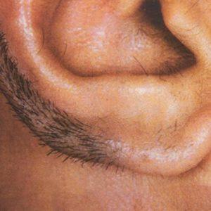 Волосы в ушах