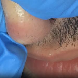 Электроэпиляция волос на крыльях и кончике носа