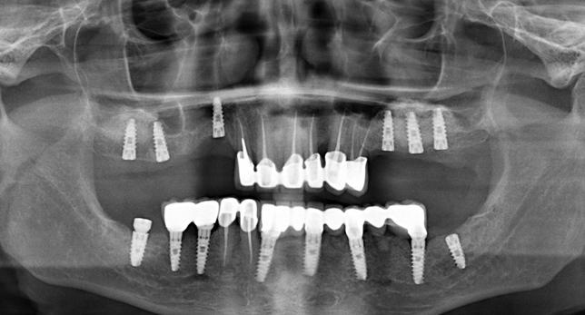 Зубные штифты и импланты