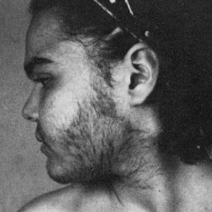 Синдромом врожденной дисфункции коры надпочечников и нежелательные волосы