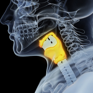 Гирсутизм при гипотиреозе