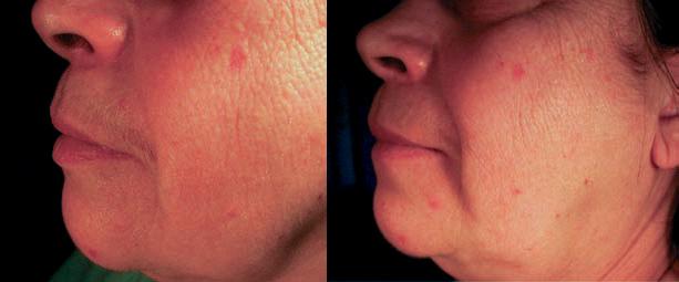 Усы у женщины период менопаузы до и через 3 месяца после использования флуридила