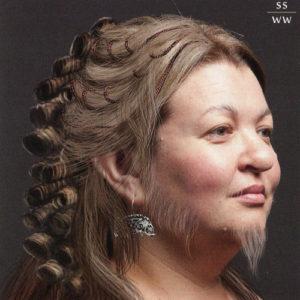 Насколько распространена женская волосатость (гирсутизм)?