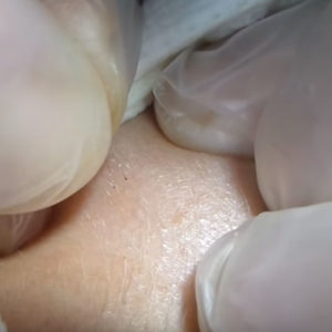 Электроэпиляция пушковых волос на лице