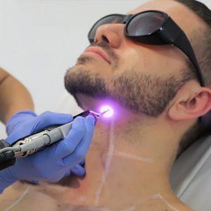 Процесс лазерной эпиляции