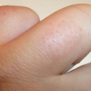 Волосы на пальцах через несколько часов после электроэпиляции
