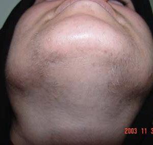 Поседение волос (лейкотрихия) при лазерной и фото эпиляции