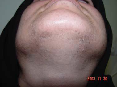 Поседение волос после фотоэпиляции