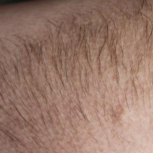 Лазерная эпиляция волосяного невуса Беккера