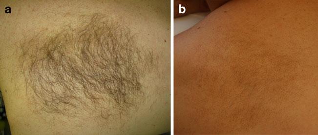 Волосы на невусе Беккера до процедуры и через год после завершающей восьмой процедуры лазерной эпиляции