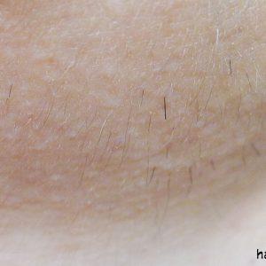 Насколько гладкой кожа будет после электроэпиляции при гирсутизме?